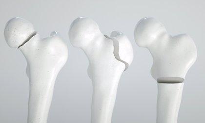 ¿Sufren también osteoporosis los hombres?