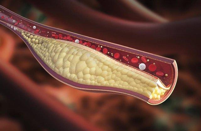 Aterosclerosis, placa en las arterias, ateroma, triglicéridos, colesterol