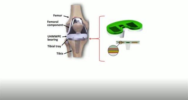Prótesis de rodilla inteligente