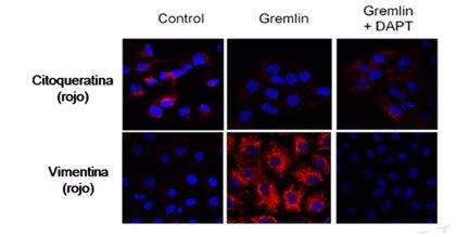 La proteína 'Gremlin' podría promover la fibrosis renal