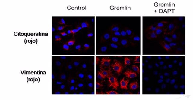 La proteína 'Gremlin', que podría promover la fibrosis renal