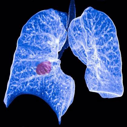Más de la mitad de los pacientes con cáncer de pulmón no alcanza los 5 años