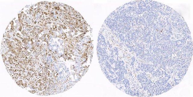 Tejido mamario en cáncer de mama