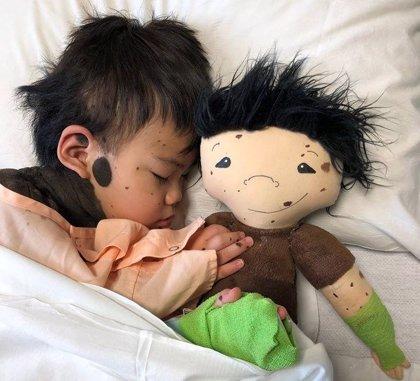 Una muñeca como yo: Una iniciativa que fabrica muñecas con las mismas discapacidades y peculiaridades que los niños