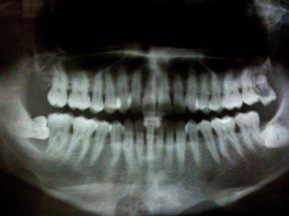 El diagnóstico microbiológico identifica las bacterias implicadas en la periodontitis