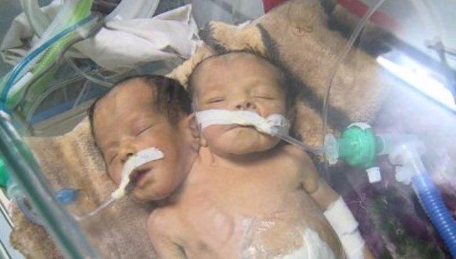 Resultado de imagen de mueren niños yemenies