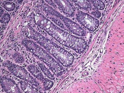 Investigadores encuentran una nueva función de una célula implicada en la muerte celular