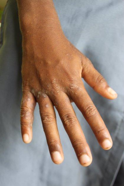 Un brot de sarna a l'Hospital Sant Camil de Sant Pere de Ribes afecta 10 persones