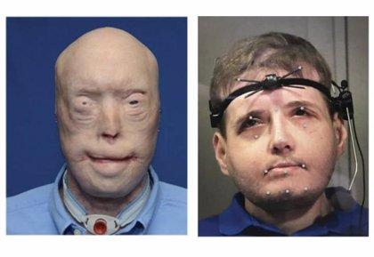 Un estudio evidencia que el trasplante de cara mejora notablemente la capacidad de habla