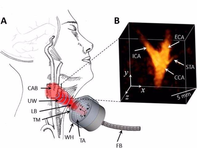 Nueva Técnica Evalúa Con Precisión Los Riesgos Cardiovasculares