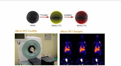 Nuevas nanomedicinas abren la puerta a un tratamiento más eficaz del cáncer de próstata