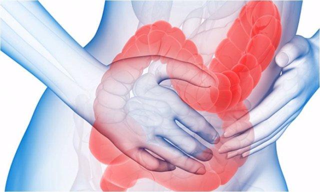 Intestino irritable, colon irritable