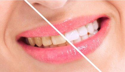 ¿Por qué se amarillean los dientes? ¿Se puede evitar?