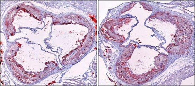 Arterias de ratón antes y después de la fragmentación del sueño