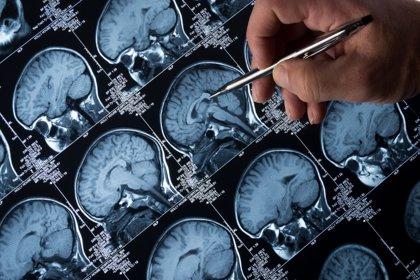 Investigadores apuntan que el proceso de limpieza de las células cerebrales es clave en el Alzheimer