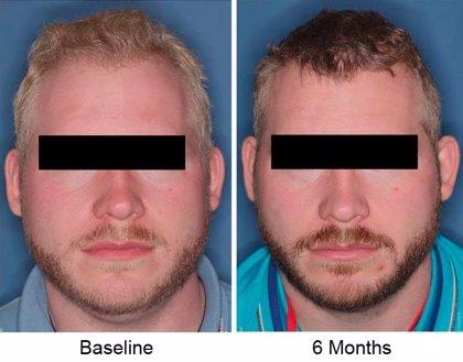 El fármaco nitisinona podría aumentar la melanina en personas con albinisimo