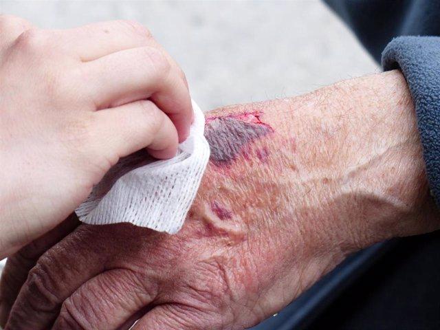 Herida, lesión en la piel