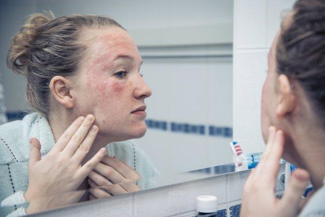 Rosácea, alteración de la piel