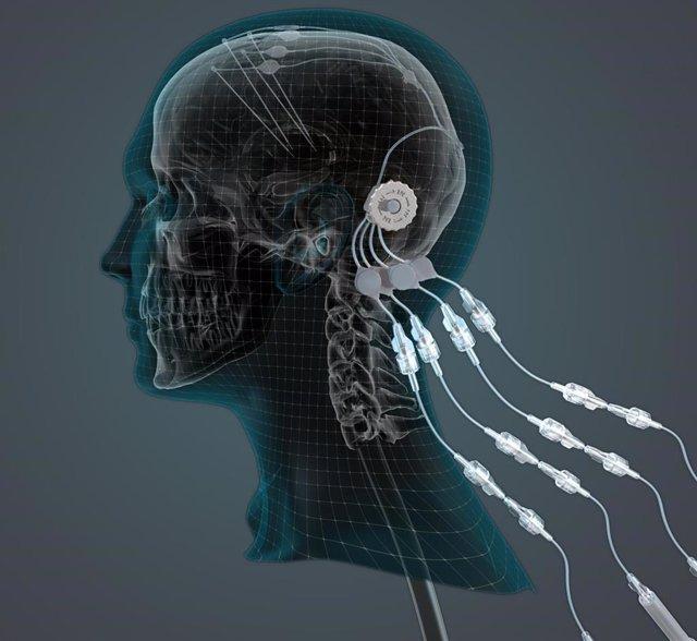 Un ensayo pionero ofrece esperanza para restaurar las células cerebrales dañadas