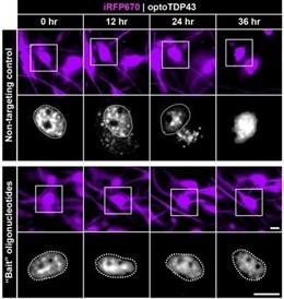 EEUU.- Investigadores hallan cómo atrapar proteínas patológicas subyacentes a mu