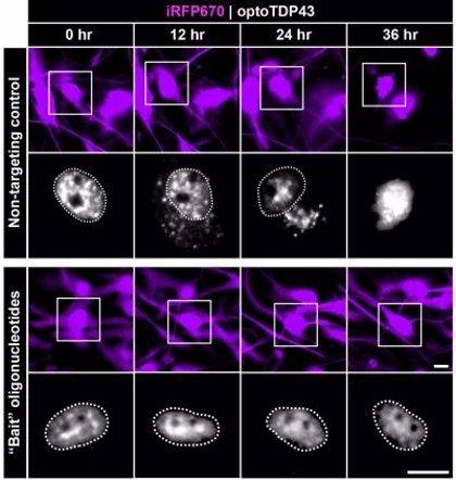 Descubren cómo atrapar proteínas patológicas subyacentes a muchos trastornos neurodegenerativos