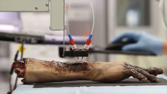 EEUU.- Crean una impresora que imprime pie humana directamente sobre una herida