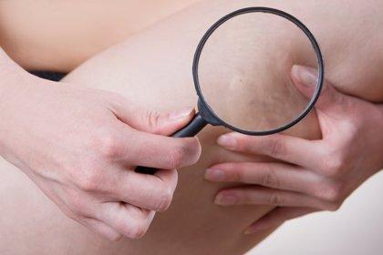 ¿Cómo prevenir la enfermedad venosa crónica?