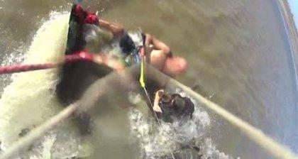 Un perro Pitbull desgarra el brazo a un surfista en una playa de Argentina