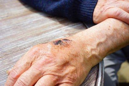 Una proteína plasmática puede ser prometedora para hacer andamios para curar heridas