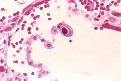 La infección por citomegalovirus amplía el espectro de alérgenos ambientales