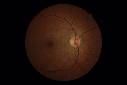 "Experto recomienda ""prevención, seguimiento e investigación"" para abordar el glaucoma"