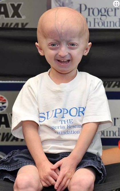 Descubren una nueva diana terapéutica para frenar la aterosclerosis precoz en progeria