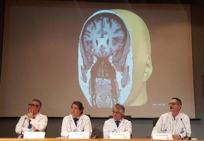 El Hospital de Mar opera lesiones cerebrales con ablación con láser por primera vez en España