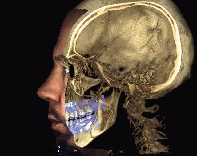 Empresas.- El Hospital La Luz incorpora un escáner facial 3D