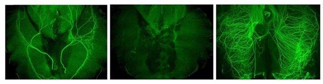 EEUU.- Científicos identifican un nuevo papel de las células que sustentan los n
