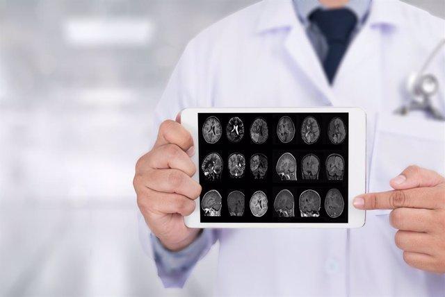 Investigadores españoles demuestran que los pacientes con Alzheimer sufren ya at