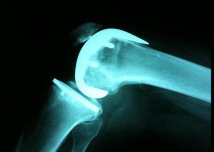 Artrosis no es lo mismo que artritis: causas, tratamiento y recomendaciones