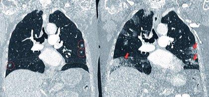 Aprobada en EEUU la primera inmunoterapia contra el cáncer de pulmón microcítico avanzado