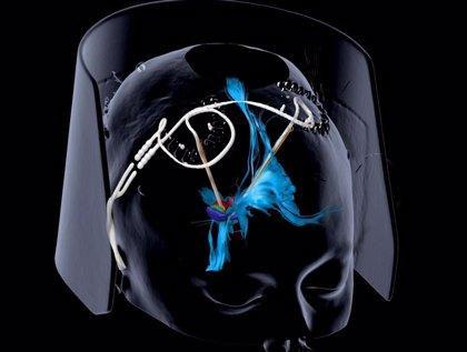 Confirman que la estimulación cerebral mejora la depresión severa