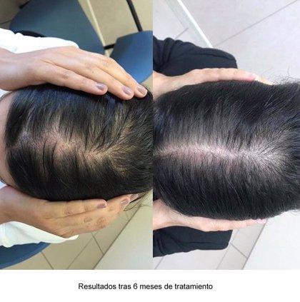 La consulta de tricología de H. Quirónsalud San José aplica una nueva terapia para la alopecia androgenética