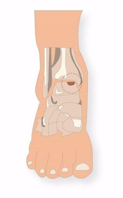"""Un estudio muestra que el implante de condrocitos autólogos es """"eficaz"""" para las lesiones de cartílago del tobillo"""