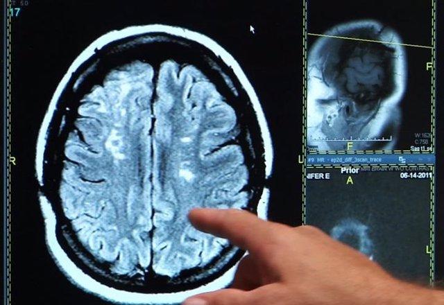 Ictus, derrame cerebral, cerebro