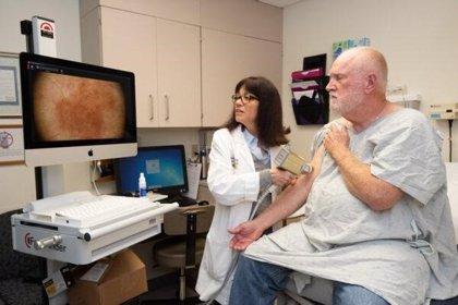 Una inmunoterapia a base de cremas tópicas puede prevenir el cáncer de piel, según un estudio