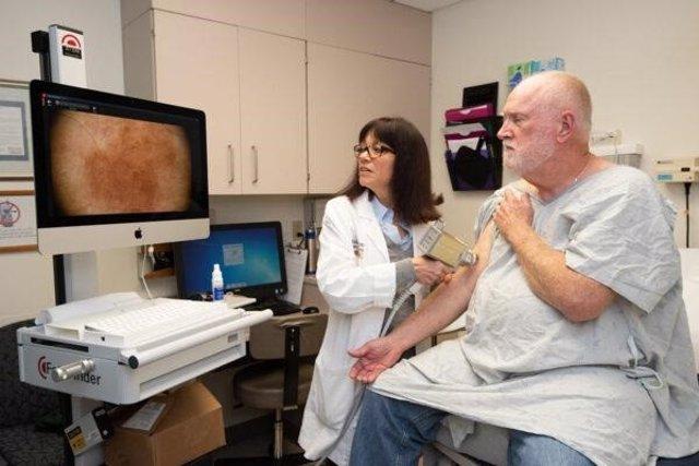 EEUU.- Una inmunoterapia a base de cremas tópicas puede prevenir el cáncer de pi