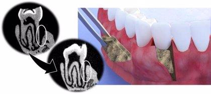 Crean una membrana que ayuda a regenerar tejido periodontal de las encías