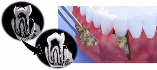 EEUU.- Investigadores crean una membrana que ayuda a regenerar tejido periodonta