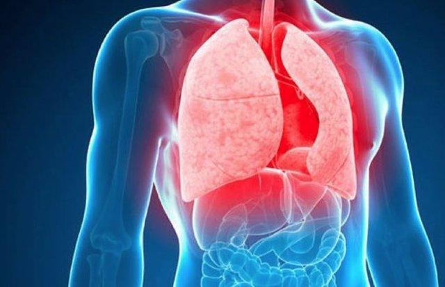 24 De Marzo: Día Mundial De La Tuberculosis, ¿Qué Sabes De Esta Enfermedad?