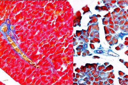 Investigadores españoles revelan un nuevo mecanismo molecular implicado en la reparación pancreática