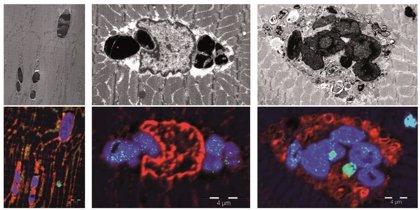 Identifican una nueva enfermedad muscular causada por una mutación genética