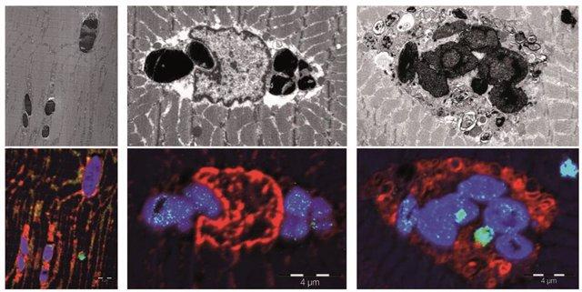 Identifican una nueva enfermedad muscular causada por una mutación en genética